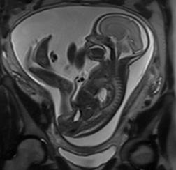 Je suis enceinte ou j'allaite mais je dois passer une IRM