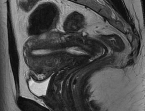 IRM pelvienne ou gynécologique