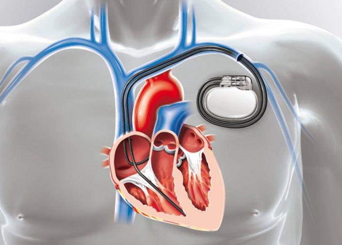 Pacemaker et IRM : Risques et solutions